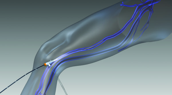 Venefit (trademark sign) targeted endovenous therapy involves inserting a small RFA catheter into the diseased vein to heat and seal the vessel.