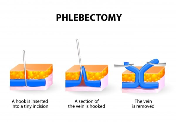 Want to learn more about Ambulatory Phlebectomy? Download our Free ...