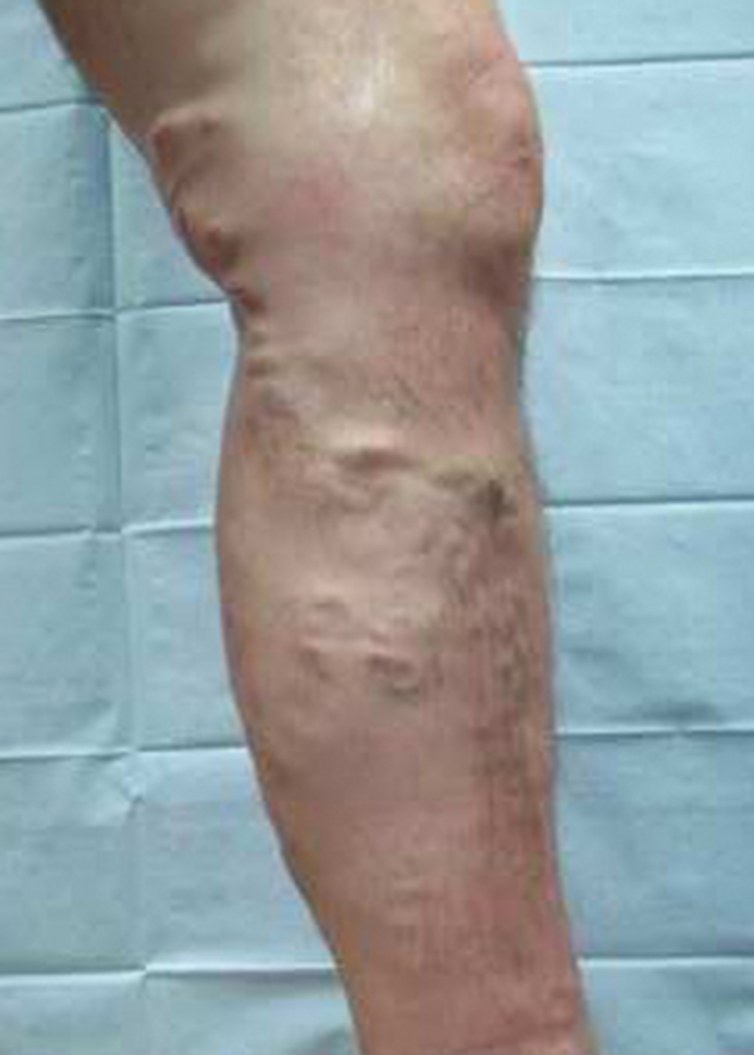 Premier Vascular & Vein Center | Varicose Veins Treatment & Procedures | Knoxville, TN