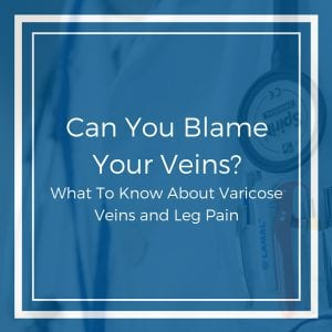What To Know About Varicose Veins and Leg Pain