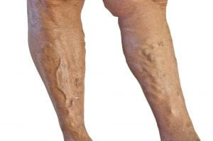 Bulging, ropy veins are a symptom of varicose vein disease.