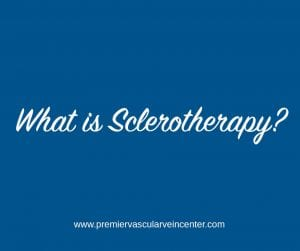 Sclerotherapy - Premier Vascular and Vein Center
