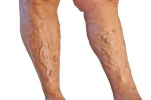 varicose-veins-bulging