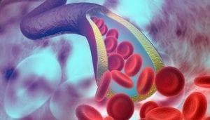 Vascular Surgeon - Premier Vascular and Vein Center